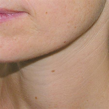mesoterapi_mesotherapy_for_after_fore_efter_cuello_despues R
